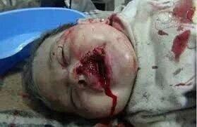 جرائم دواعش العصر ال سعود وحلفائهم في اليمن بأي ذنب وماذا جنت ياسلمان الكلب!!! #300daysOfWar#YEMEN https://t.co/fP0AYXDUYo