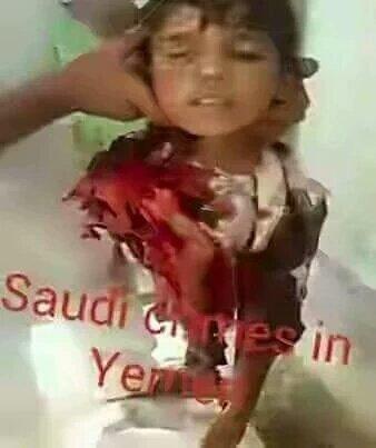 هل هذا يرضيكم ياعرب  يامن تدعوا أنكم إخوة لنا اشتراكم النظام السعودي باموال تباركون هذه الجرائم  #300daysOfWar#YEMEN https://t.co/inJ41im4ZF