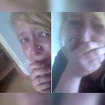 Joven de 18 años salva su vida publicando estos 'selfies' en Facebook https://t.co/3vEBmXXzW4 https://t.co/7tSL5ghjVN