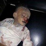 صور لبعض من جرائم #السعودية في #اليمن #ارهابكم_سيرتد_عليكم #KSAkillYemenis https://t.co/eCejoztjTy