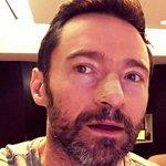 .@RealHughJackman says #SlipSlopSlapSeekSlide after having his 5th #skincancer removed: https://t.co/BvRGkkZ12z https://t.co/z62hCG4tvx