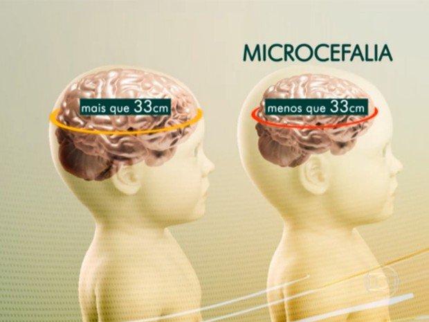 Médicos brasileiros e argentinos suspeitam que inseticida seja a causa da microcefalia https://t.co/F9hg40PuW7 https://t.co/d75wev278w