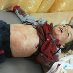 Little boy Yahya Mohamed Raslan, victim of #Russia airstrikes on #Sheikh_Essa town #Aleppo cs #Syria FEB 12 https://t.co/iacHFgUKkk