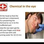 Mata termasuk bahan kimia? Alirkan dgn air mengalir dgn mata yg terkena dibawah. Lepas tu sila ke ER. #MedTweetMY https://t.co/JLtyCkj3zV