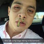 Supportive tlaga SC UPDATE ADN VOTE PAMORE #VoteMaineFPP #KCA https://t.co/zYCGCXqjCT