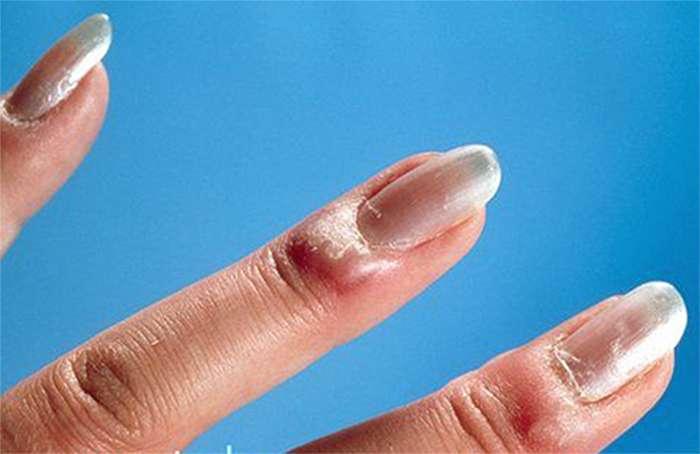 Что такое панариций на пальце руки в домашних условиях 407