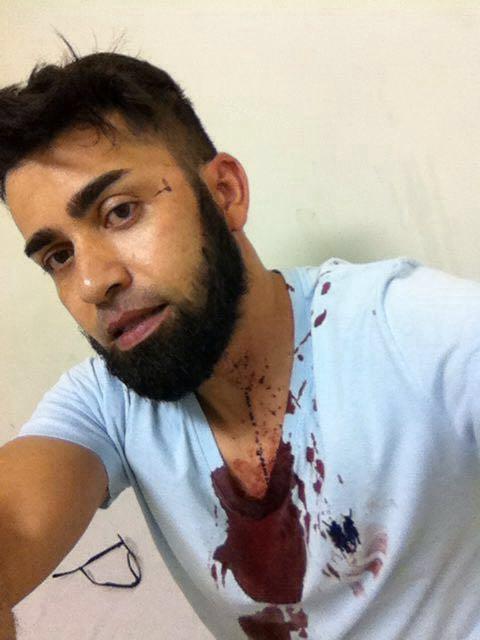 O Jornal Nacional não mostrou, mas um companheiro acabou de ser agredido em Santo André. Parabéns Juiz Moro https://t.co/3rw1C0jwSX