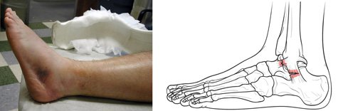 Did you know that without proper treatment, a severe sprain can weaken your ankle, increasing your risk of reinjury? https://t.co/gGkGaaKSOx