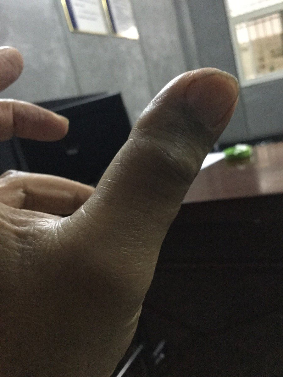 朱承志左手大拇指18日晚上被赤壁警方折断?(待查)我还在赤壁公安局。朱承志被赤壁警方用老虎凳固定15个小时。到现在为止一直没有离开过老虎凳(大小便除外) https://t.co/U40kuL98Ym
