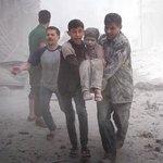 اللهم نسألك أن تنصر اخواننا في حلب..  اللهم عليك بمن ظلمهم اللهم اشفي مرضاهم وارحم شهدائهم  وخفف آلامهم #حلب_تحترق https://t.co/LwGULtK4WI