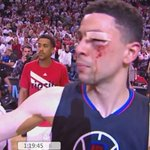 Gotta give it up for Austin Rivers tonight:  19 points, 8 assists, 6 rebounds, 1 steal, 0 turnovers, & 11 stitches. https://t.co/chfRetRDIM