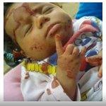 في ذمة جبناء العالم و الضمائر الميتة ...???? #حلب_يا_وجعي #حلب_تحترق #حلب_الصامدة https://t.co/nnKW47cI1V