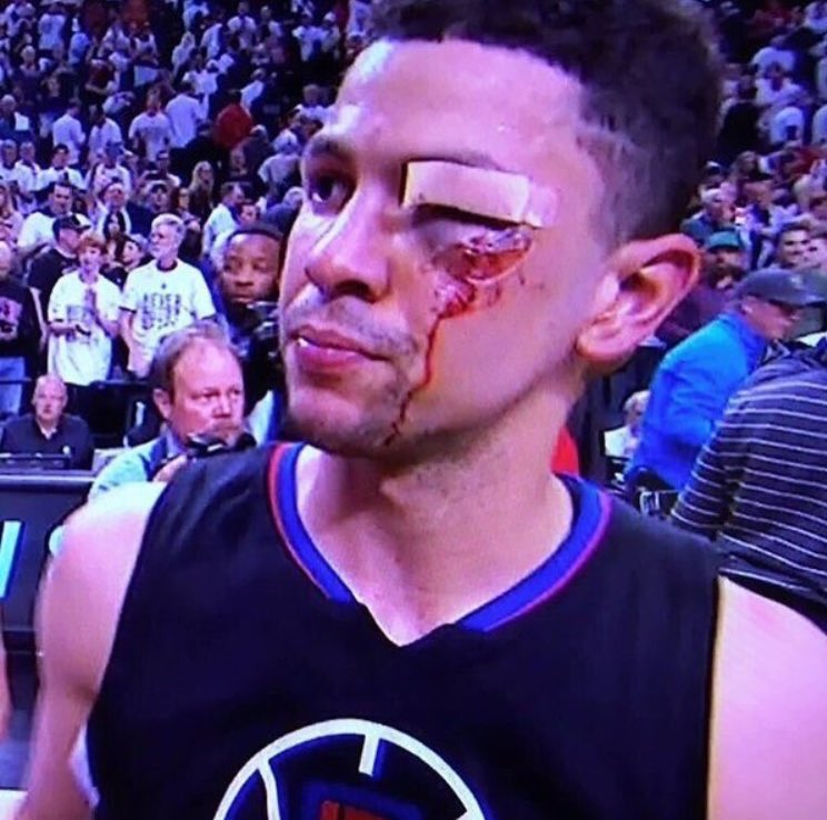 I dare you to tell me @AustinRivers25 is in the NBA because of his Dad.21pts,8 ast,6 reb,11 stitches.#Respect