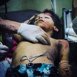 ياراقدًا والفجر ينتحبُ والدمع من عينيه ينسكب.. ألم تسمع الأنباءَ عن حلبٍ ؟! دُكّت فما بقيَت لنا حلبُ . #حلب_تحترق https://t.co/xL3fI0ZI72