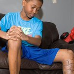 #Mississauga boy badly bitten by dog gets 20 stitches and undergoes 2 hours of surgery https://t.co/oaHtsOaA3M https://t.co/U0TDyxXVj1