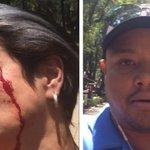 #LordPopó: Sujeto golpea a actriz tras pedirle que recogiera heces de su perro https://t.co/ixqAbkGcyS https://t.co/IhQlbRrOMZ
