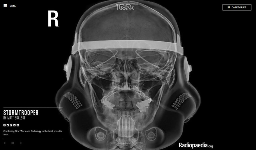 #MayThe4thBeWithYou, radiologists! This great stormtrooper image is by @docskalski, from our 2014 image contest. https://t.co/OSkYFc6J5x