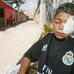 Garoto fica cego após ser atingido por estilhaços de bomba da PM em SP. https://t.co/2k5frdAfJc https://t.co/Id7XOQqMmX