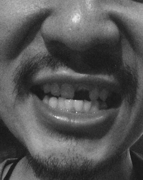 我らがリーダーBGYの歯がかけました。 1万リツイートいけば、僕が治療費全額払います!!  写真怖いT_T ワンマンツアーまでに間に合うか!!? https://t.co/oZmh6HDPXW