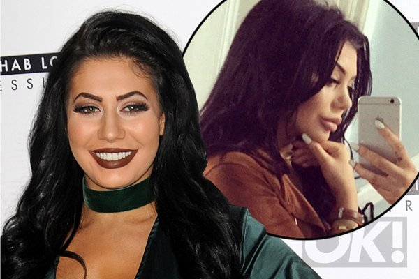 GeordieShore's Chloe Ferry is not bothered by 'Michael Jackson' nose job jibes!