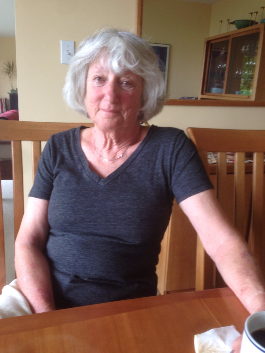 Becky Lewis, 72, has been missing from the area of 500 E/14th Ave since yesterday (5/8/16) at 2pm. https://t.co/VA9exRhB4j