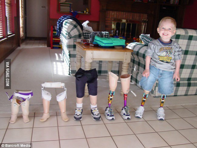 Growing up with prosthetic legs. It should be affordable to everyone in need with #3dprinting. #digitalhealth https://t.co/8IXM2Psd82