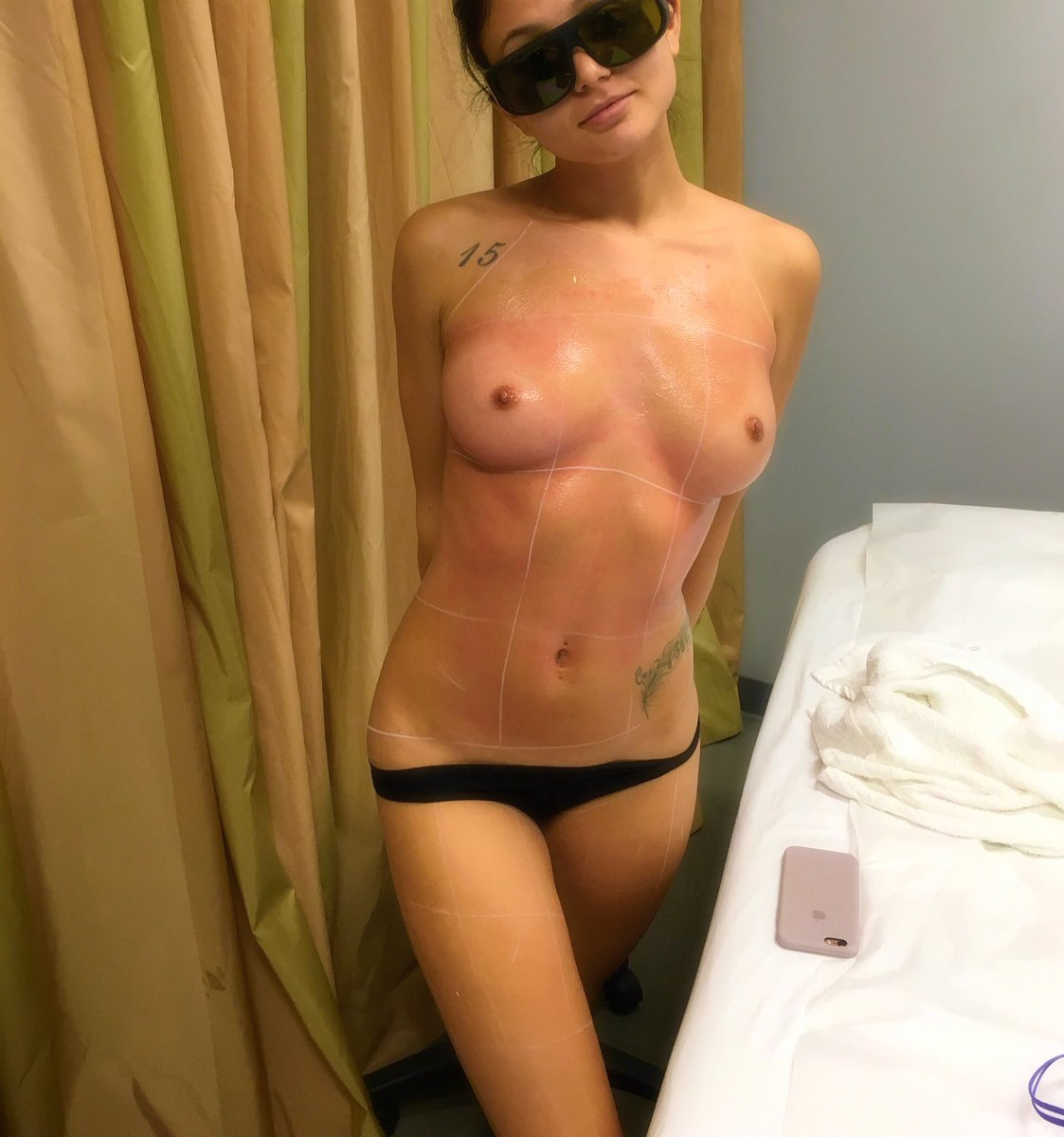 Just did my first laser hair removal treatment (full body) ? HXsxswOTlF