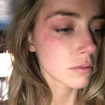 Amber Heard submitted this photo as evidence for her domestic violence restraining order https://t.co/sA3BZc3D6f https://t.co/VjHxoobna6