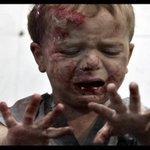 """""""Syria is Bleeding ... wake up ya Muslims https://t.co/TU0Eh4ta92"""