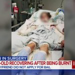 Teenage girl has surgery after her ex-boyfriend allegedly set her alight. #9News https://t.co/reEBWqiJcj