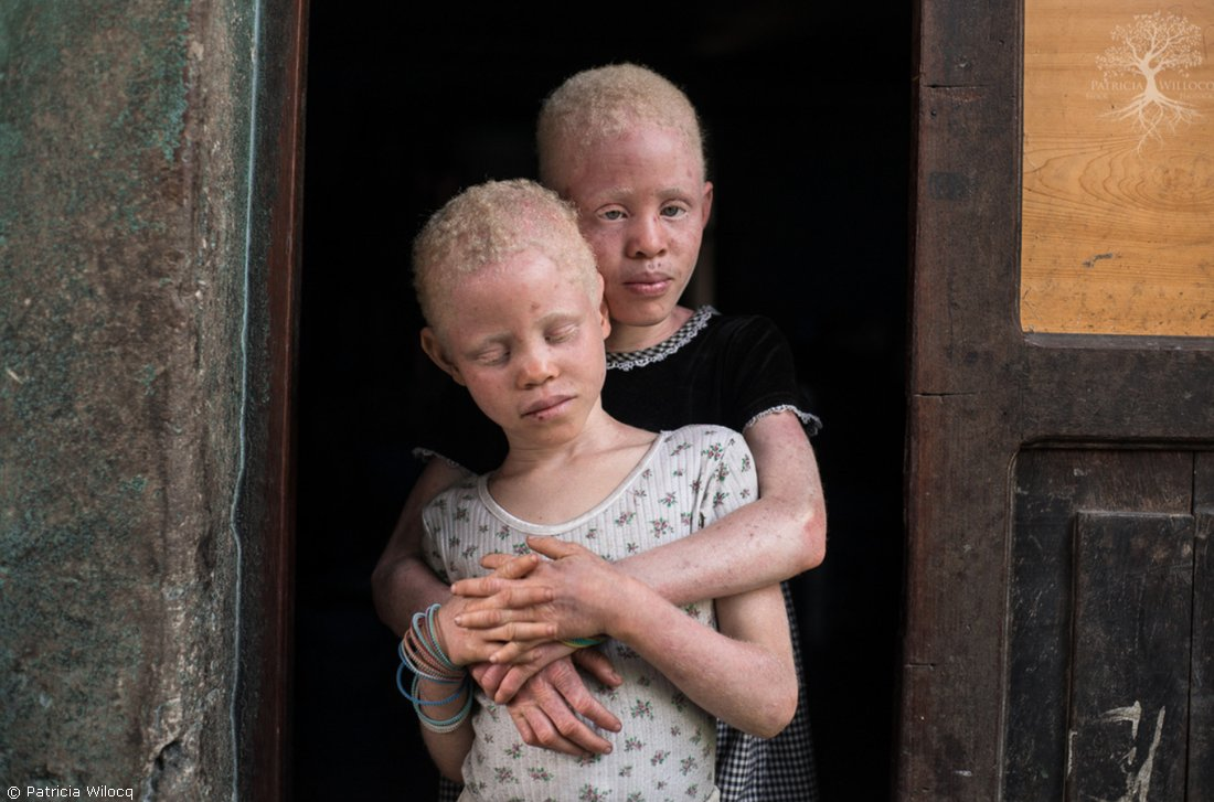RT @UNICEF: On #AlbinismAwareness Day, let's speak out against discrimination and violence! @UNICEF_Moz https://t.co/1toEoHX5fH
