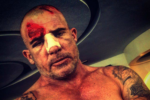 Wishing Prison Break's Dominic Purcell a speedy recovery after his serious set injury. https://t.co/yz7ibAJeu0 https://t.co/ToMYfFtZyL