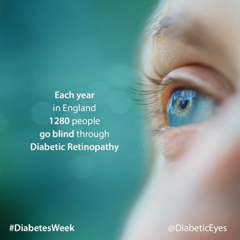 Did you know that 1,280 ppl lose their sight due to diabetic retinopathy every year? #DiabetesWeek #WednesdayWisdom https://t.co/HX9JbU7h3P