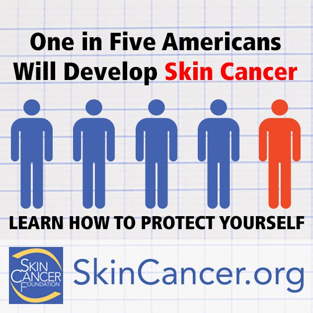 It's the most common cancer in the world. Learn how to prevent or detect it early at https://t.co/lduSFiCC9Q https://t.co/NrCHVIx1K1