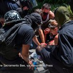 10 people were injured during a white nationalist protest in Sacramento https://t.co/u6m8SdGldS https://t.co/kbxiNmv0Qd
