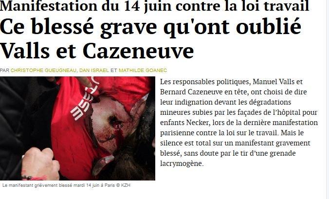 Manif du 1406 c/la #LoiTravail .Ce blessé grave qu'ont oublié #Valls & #Cazeneuve https://t.co/0qvb5f9D7A https://t.co/pxbzPRoqfv