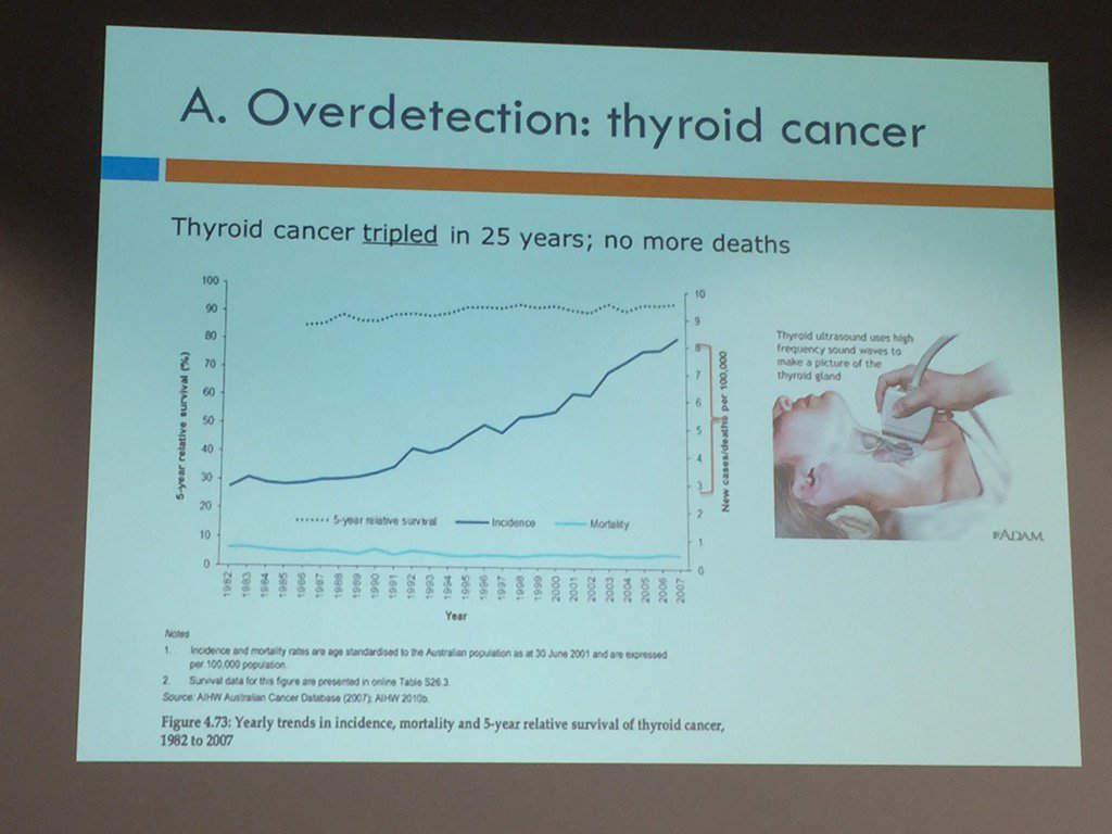 example over detection of thyroid cancer, 3x incidence but no change in mortality @PaulGlasziou #EvidenceLive https://t.co/iBIMHWBHwn