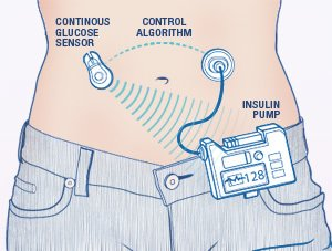 Diabetes patients could watch their bionic pancreas (sensor+insulin pump) in action on a smartphone. #digitalhealth https://t.co/uSbC3Q4lDy