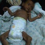 Este bebé y 3 hermanitos, desnutridos, fueron abandonados ayer en #Píritu. Y Maduro rechaza ayuda humanitaria https://t.co/qykjdisy4u