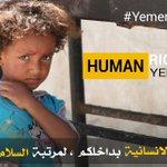 دونما ذنب اقترفته أيديهم ، اطفال #اليمن تحت خطر الجوع والعنف من الحرب . #un #yemen #hrw #unicef @UN_HRC https://t.co/d3RqIF4pt6