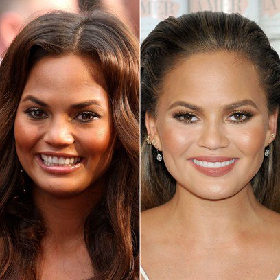 Celebrity Teeth – What They Looked Like Before & After ...