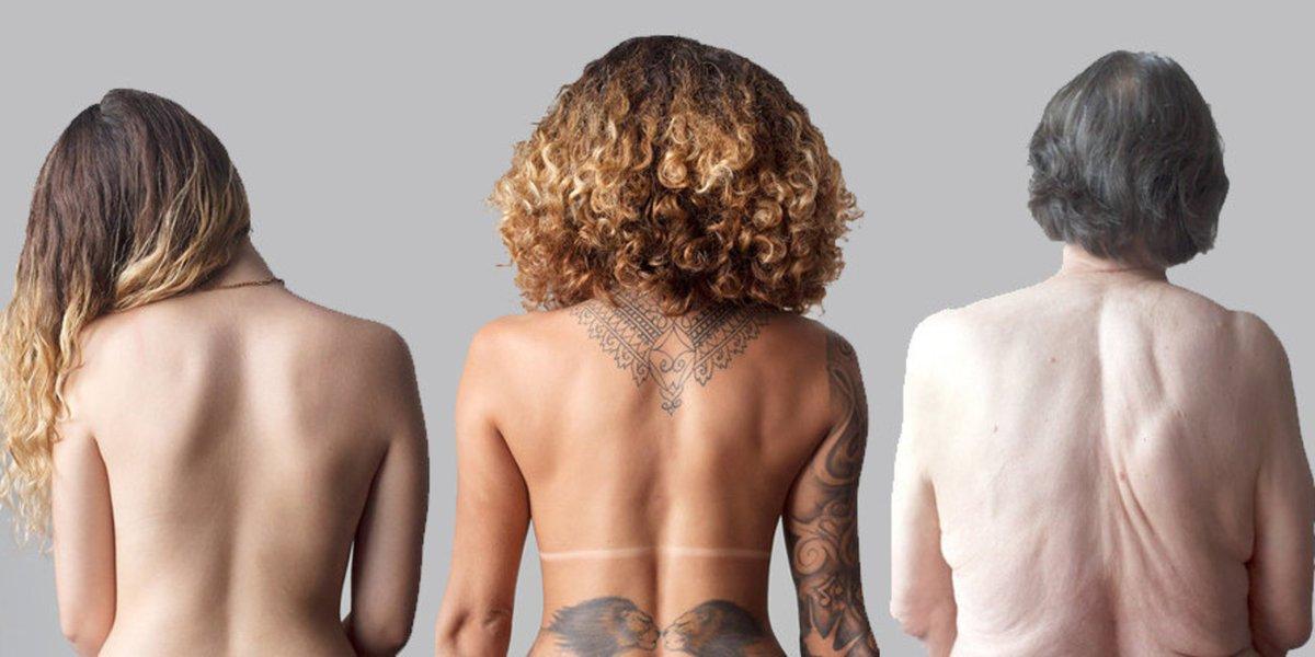 stretch-mark-nude