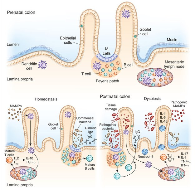 A new review discusses the #microbiome in early life & propsects for related therapeutics: https://t.co/YLoTYIbKZM https://t.co/ztsbG0wCib