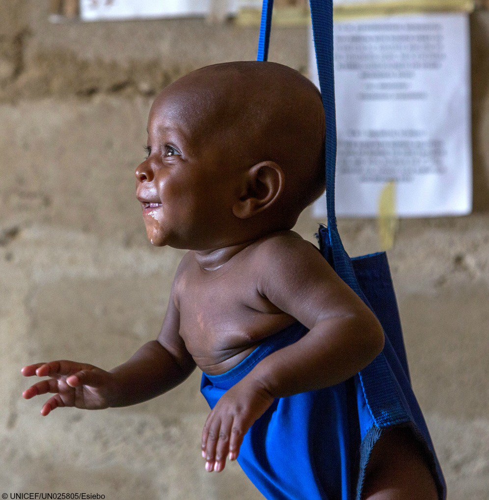 the impact of malnutrition in nigeria With a stunting rate over 40 percent among children under five in nigeria our impact spring around the assessing drivers of malnutrition in nigeria.