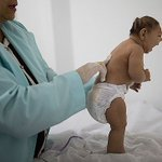 Registran primer nacimiento en Europa de guagua con microcefalia a causa del zika https://t.co/3tdvKEZqI5 https://t.co/sGv4SE2asJ