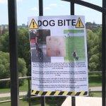 After daughter bitten, Ottawa mom wants dog owner to come forward: https://t.co/PHYZJfKWTd #ottnews https://t.co/qEyb6kqDOL