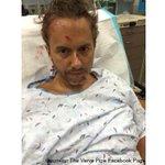 .@thevervepipe lead guitarist struck by car in GR https://t.co/oP42EGdsUr https://t.co/SWtKho9eja