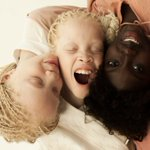 Lara and Mara, black twins with albanism, and their older sister Sheila By Brazilian photographer Vinicius Terranova https://t.co/yr6XL7CwQy