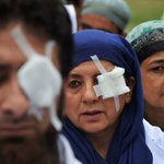 In Kashmir, Indias ready use of pellet guns is causing epidemic of devastating eye injuries https://t.co/S3A6x2Tu9i https://t.co/0JSRxphhFL