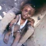 هذا الطفل هو الناجي الوحيد من اسرة قصفت منزلها طائرات #حماة_الحرمين في محافظة #صعدة #اليمن https://t.co/dQlnskBqRv